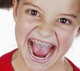 Orthodontie kosten