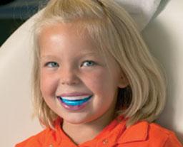 fluoridebehandeling bij de tandarts