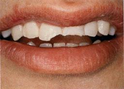 tand gebroken