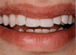 tand gerepareerd